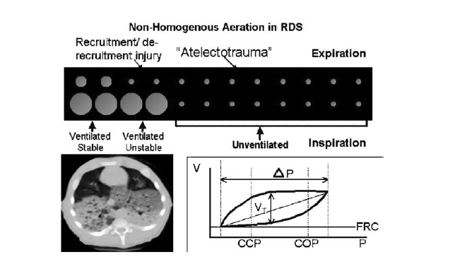 Non-homogenous aeration in RDS Recruitment/de- Atelectotrauma Expiration recruitment injury Ventilated Stable Ventilated unstable (tratto da Keszler M.Volume targeted ventilation.