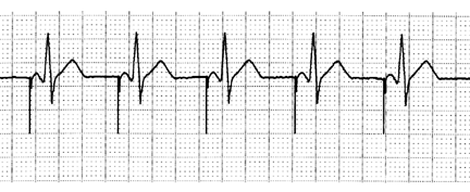 A Pace / V Sense Atrial Pacing with Normal A V Conduction