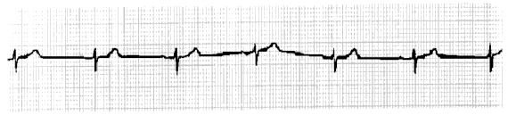Sinus Node Dysfunction Sinus Bradycardia Persistent slow rate from the SA node.