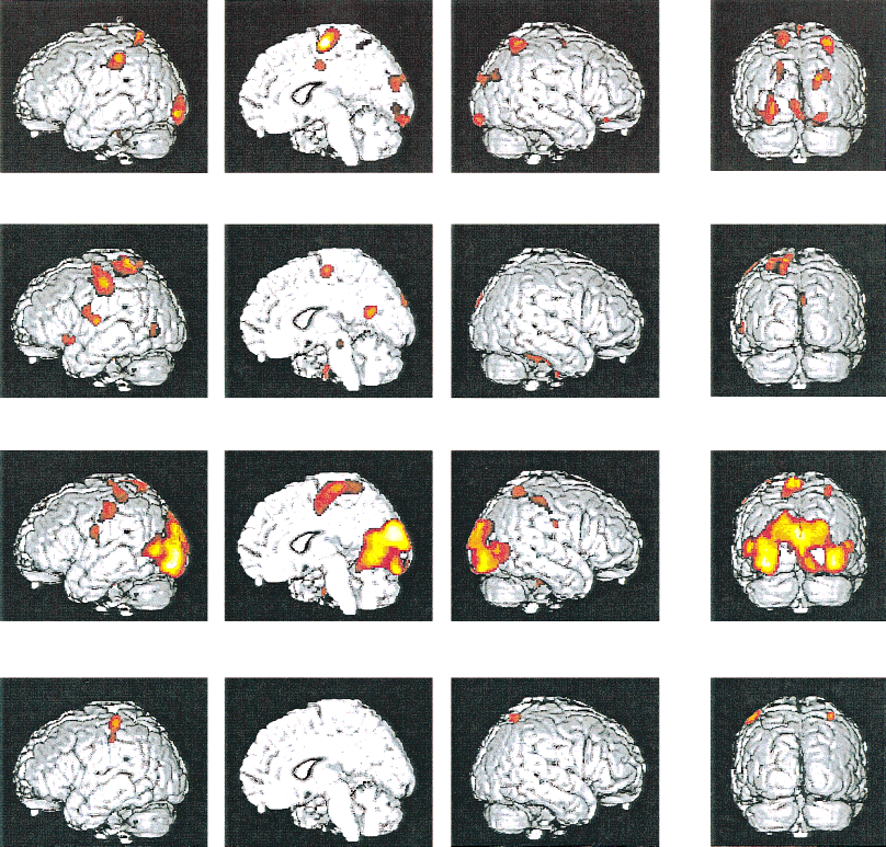 Figure 1. Cerebral activity pattern of four stages of meditation vs. normal consciousness (all with auditory stimulation).