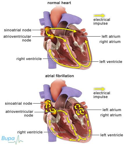 ATRIAL FIBRILLATION Atrial fibrillation (AF) is an abnormal heart rhythm characterized by