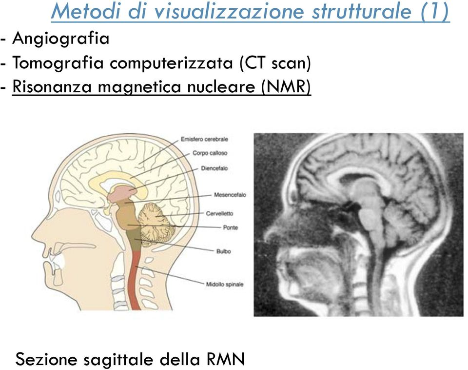 computerizzata (CT scan) - Risonanza