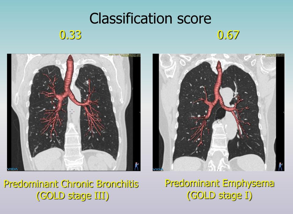 Bronchitis (GOLD stage III)