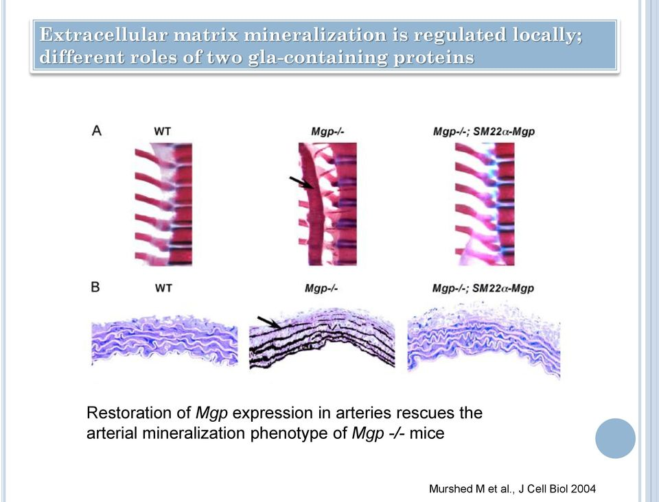 of Mgp expression in arteries rescues the arterial