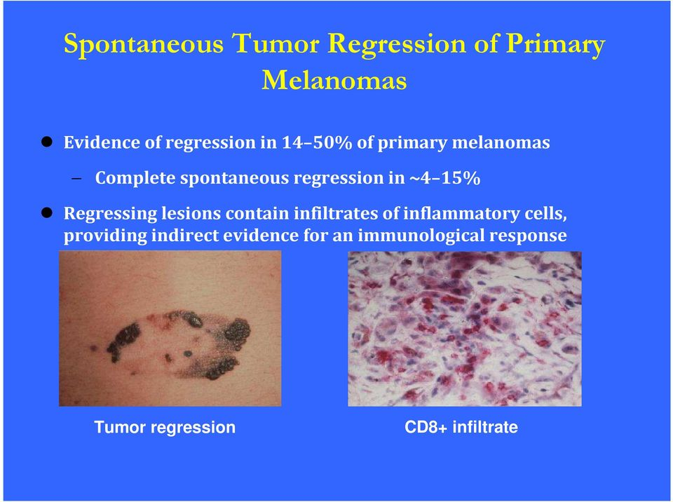 Regressing lesions contain infiltrates of inflammatory cells, providing