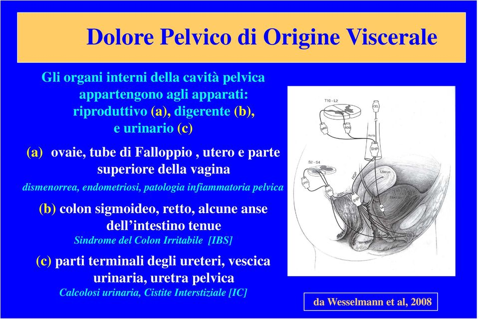 patologia infiammatoria pelvica (b) colon sigmoideo, retto, alcune anse dell intestino tenue Sindrome del Colon Irritabile [IBS]