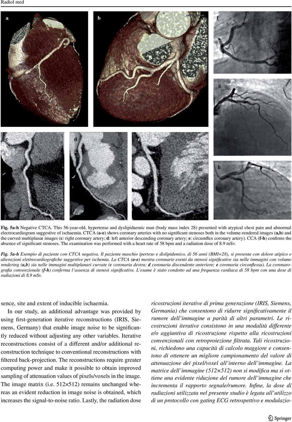 CTCA (a-e) shows coronary arteries with no significant stenoses both in the volume-rendered images (a,b) and the curved multiplanar images (c: right coronary artery; d: left anterior descending