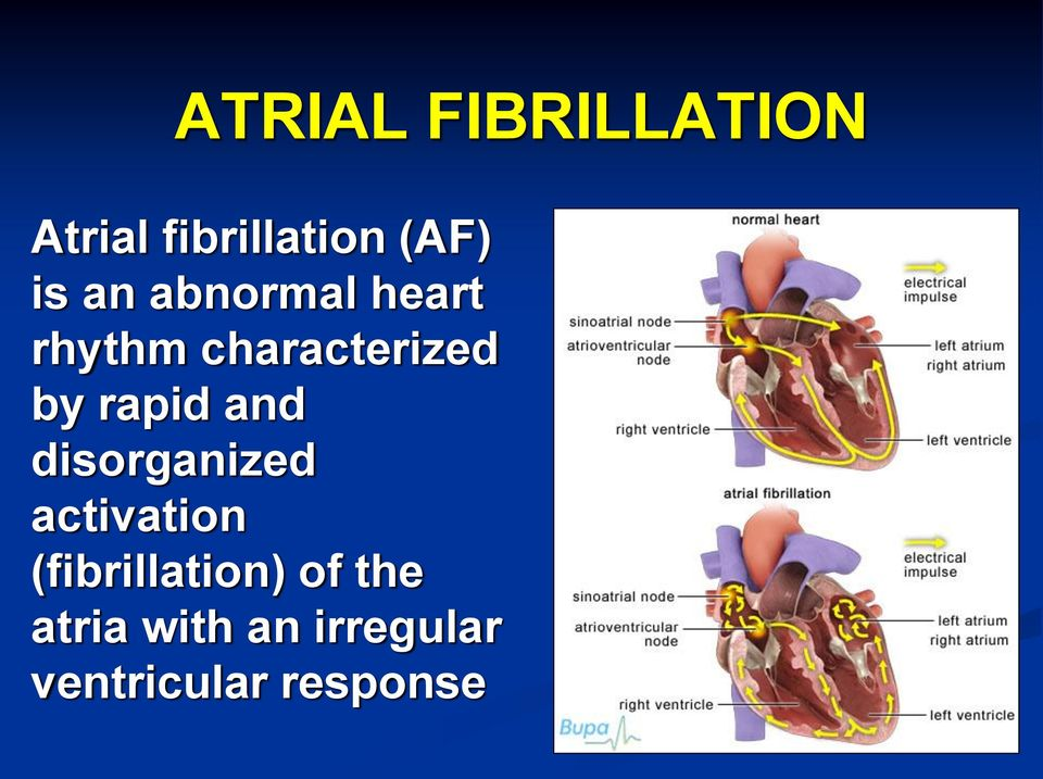 and disorganized activation (fibrillation) of
