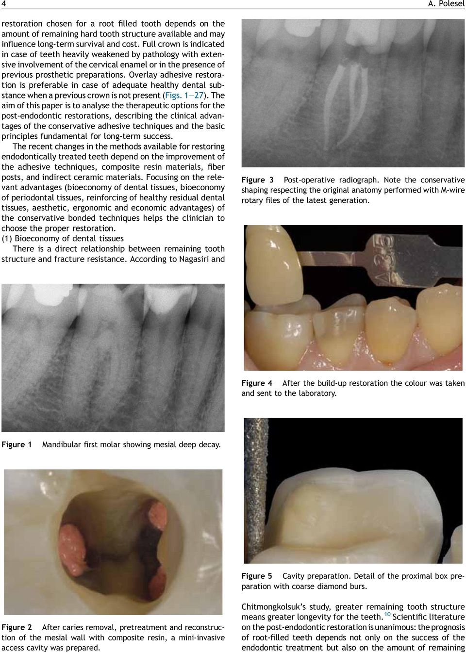 Overlay adhesive restoration is preferable in case of adequate healthy dental substance when a previous crown is not present (Figs. 1 27).