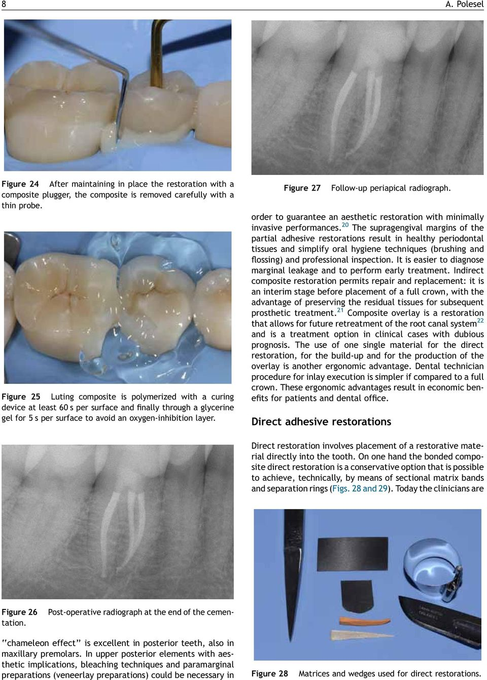 Figure 27 Follow-up periapical radiograph. order to guarantee an aesthetic restoration with minimally invasive performances.