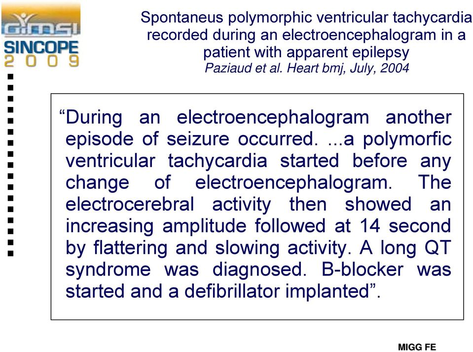 ...a polymorfic ventricular tachycardia started before any change of electroencephalogram.