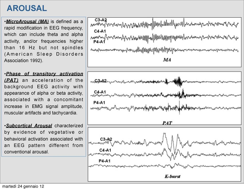 Phase of transitory activation (PAT) an acceleration of the background EEG activity with appearance of alpha or beta activity, associated with a