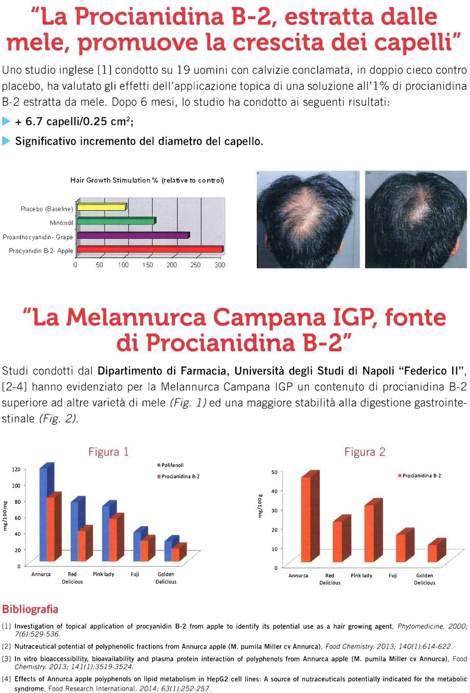 25 cm 2 ; Significativo incremento del diametro del capello. Hair Growth Stimulation % (relative to contron Piace bo (8aseline) Proanthocyanldln- Grape Procyanldin 8-2.A.