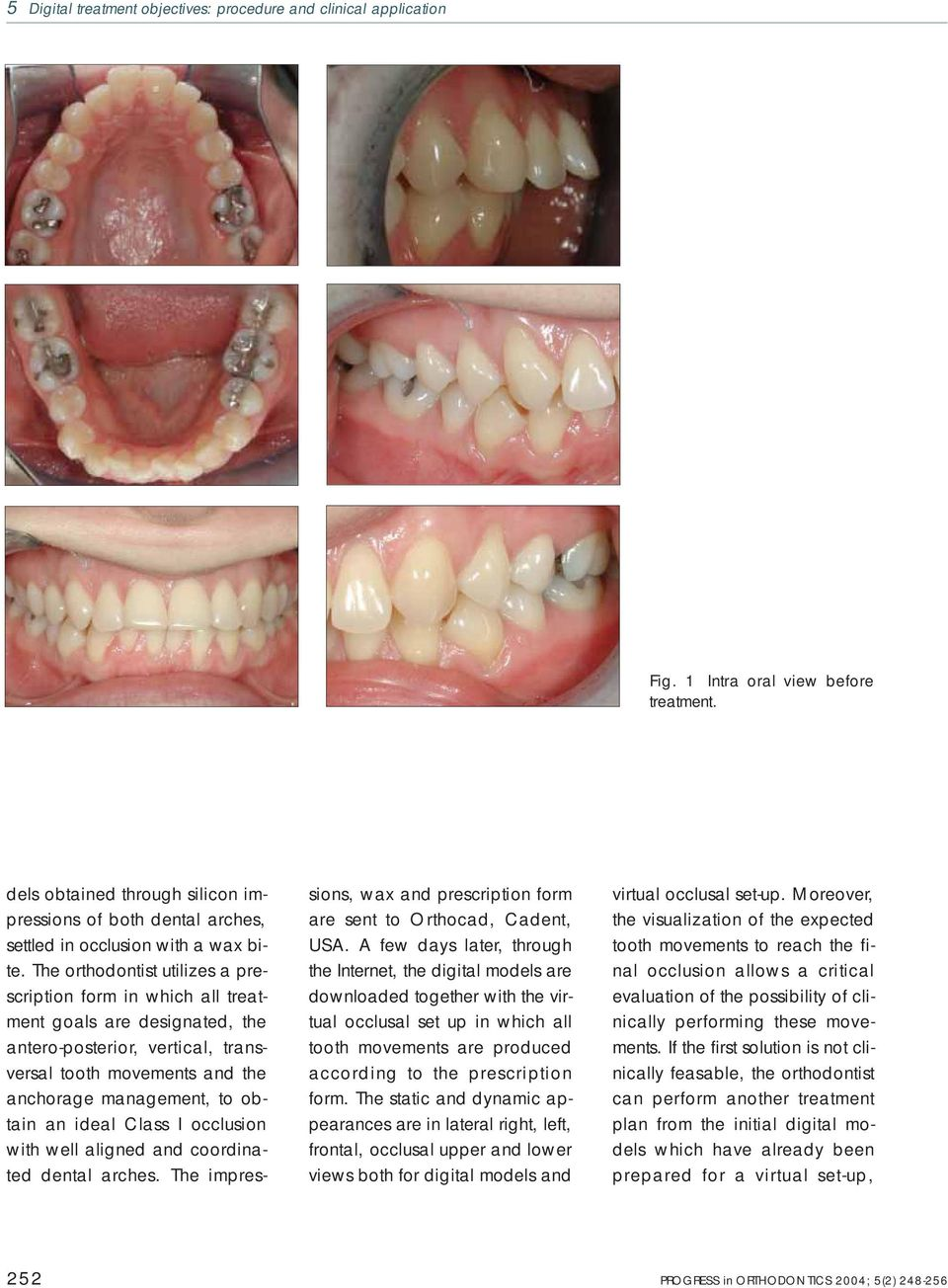 The orthodontist utilizes a prescription form in which all treatment goals are designated, the antero-posterior, vertical, transversal tooth movements and the anchorage management, to obtain an ideal