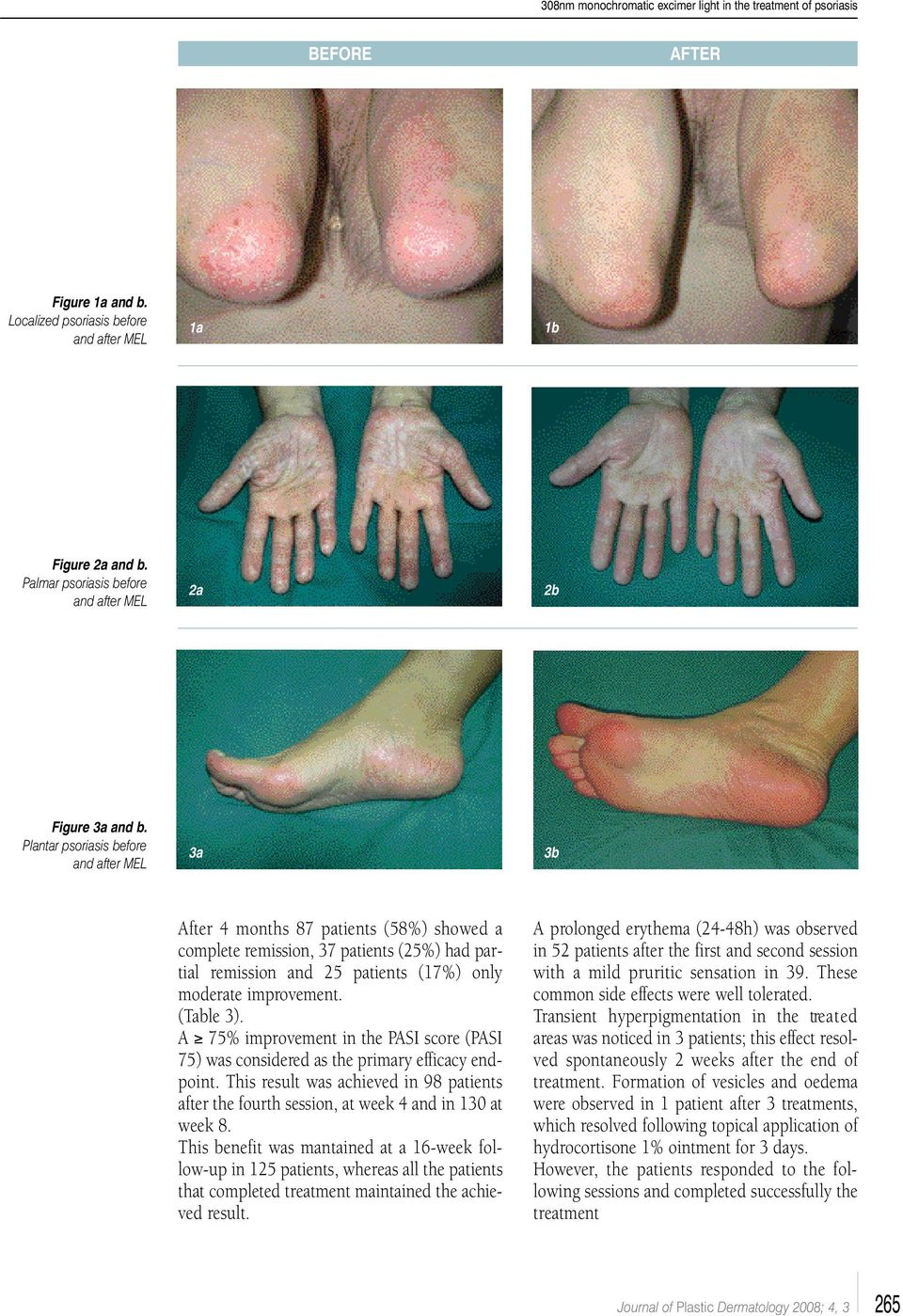 Plantar psoriasis before and after MEL 3a 3b After 4 months 87 patients (58%) showed a complete remission, 37 patients (25%) had partial remission and 25 patients (17%) only moderate improvement.