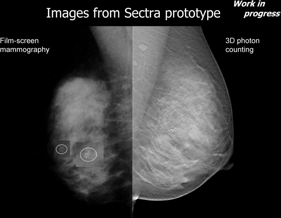 mammography Work in