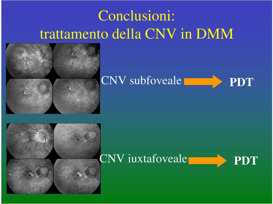 CNV in DMM CNV