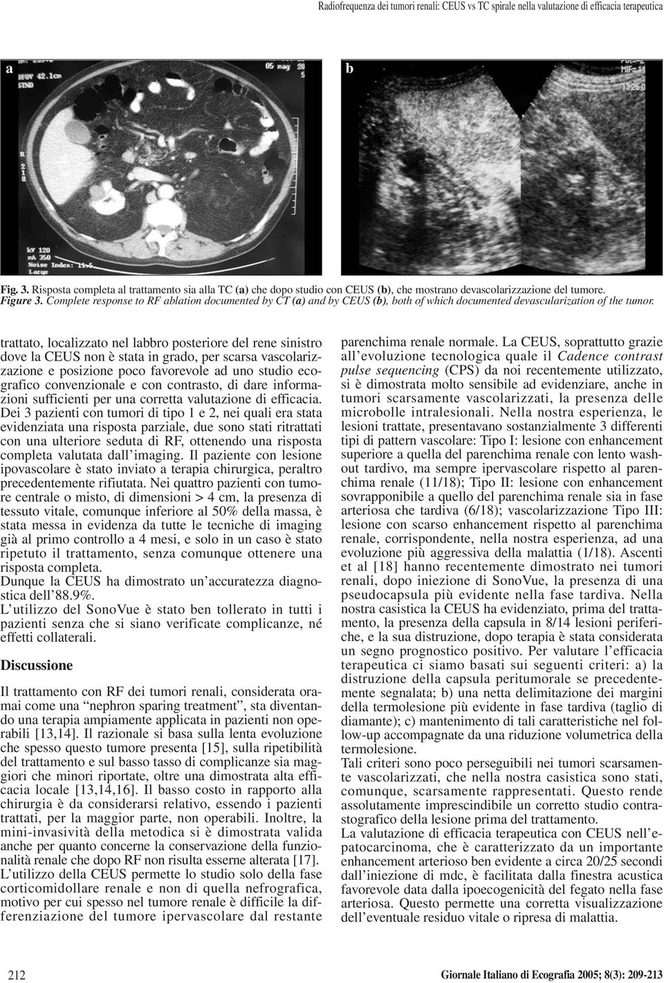 Complete response to RF ltion documented y CT () nd y CEUS (), oth of which documented devsculriztion of the tumor.