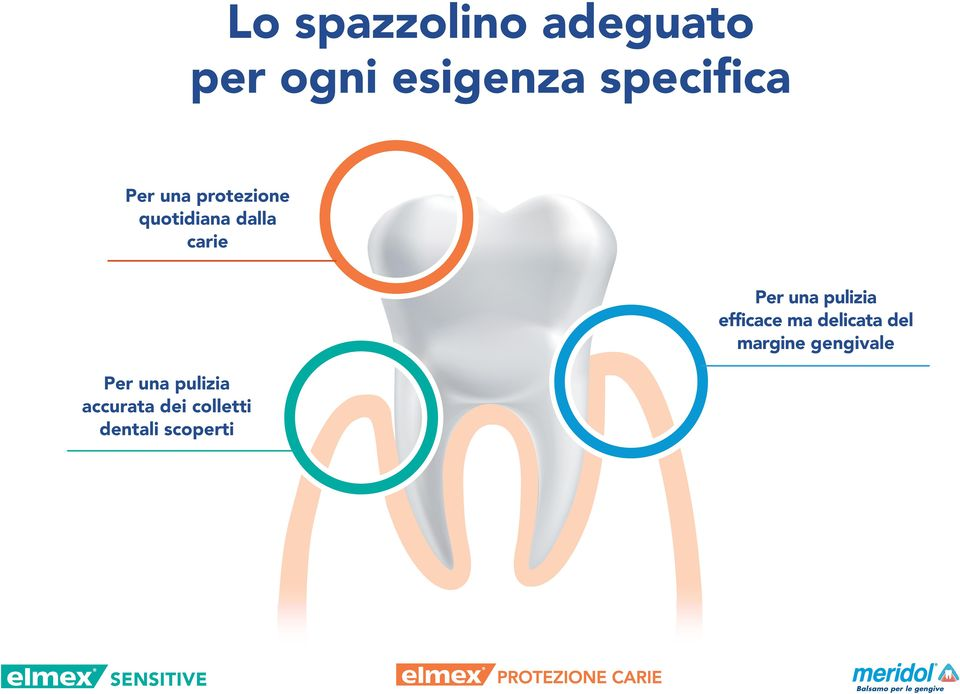 carie accurata dei colletti dentali scoperti