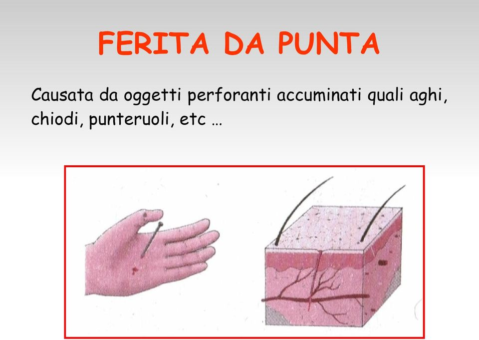 perforanti accuminati