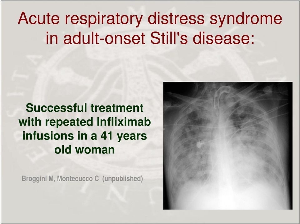 treatment with repeated Infliximab infusions
