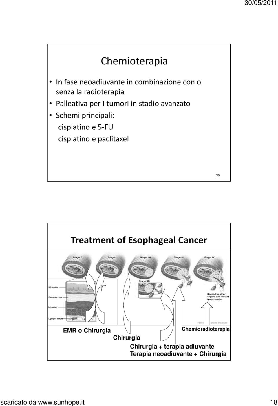 cisplatino e paclitaxel 35 Treatment of Esophageal Cancer EMR o Chirurgia