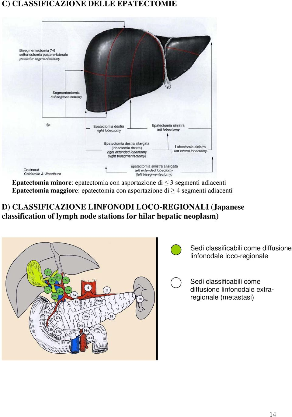 LOCO-REGIONALI (Japanese classification of lymph node stations for hilar hepatic neoplasm) Sedi classificabili