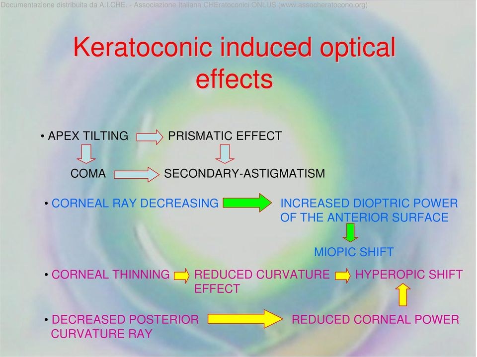 THE ANTERIOR SURFACE MIOPIC SHIFT CORNEAL THINNING REDUCED CURVATURE