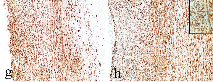 RISULTATO FINALE α-sma CD-68 UP α-sma= α-smooth muscle