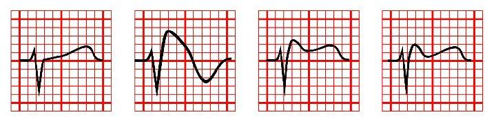 Bayes de Luna et al: Current Electrocardiographic criteria for diagnosis of Brugada pattern: a