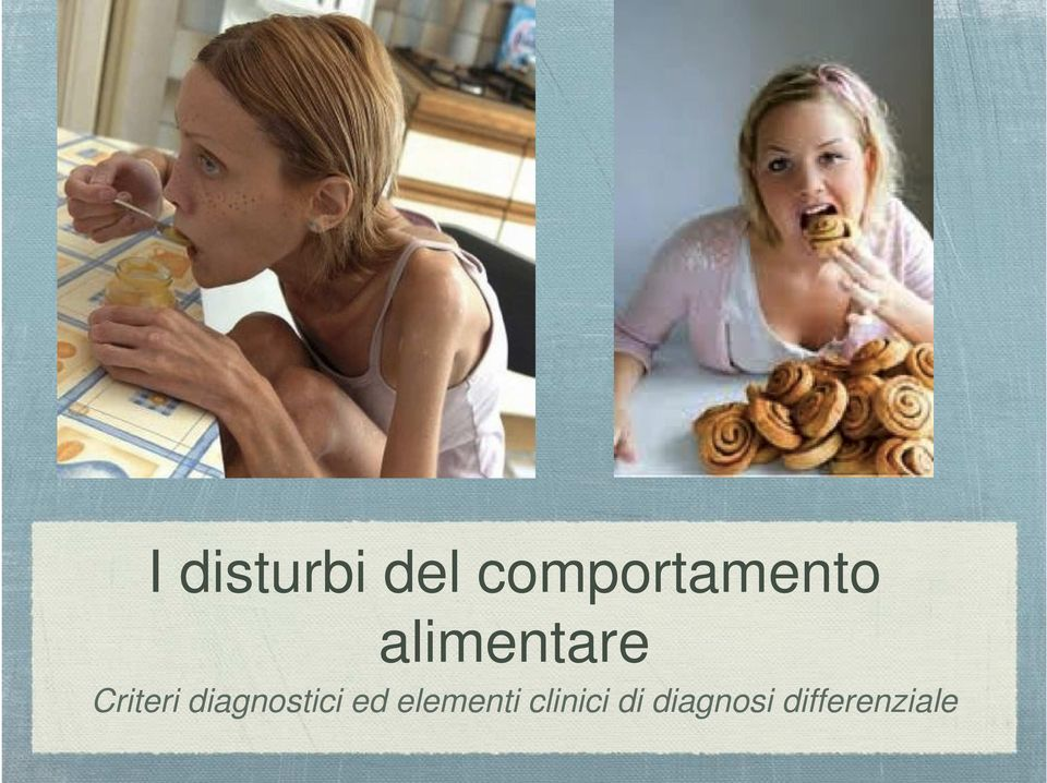 Criteri diagnostici ed